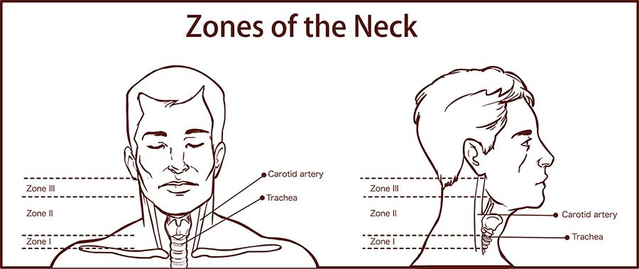 Zones of the neck